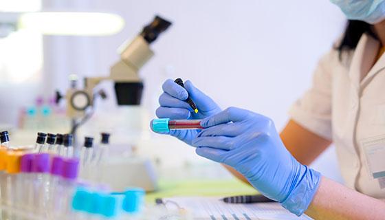 Covid-19 disease Antibody test